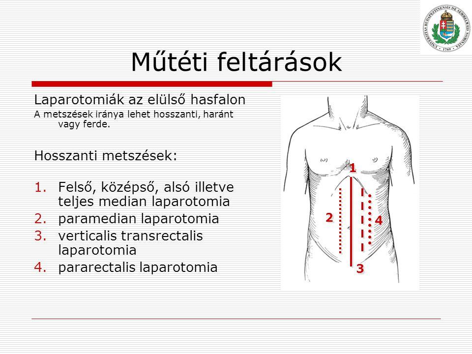 Műtéti feltárások Laparotomiák az elülső hasfalon A metszések iránya lehet hosszanti, haránt vagy ferde.