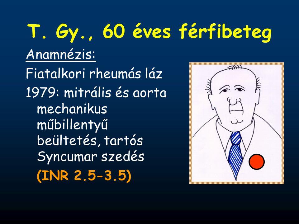 Anamnézis: Fiatalkori rheumás láz 1979: mitrális és aorta mechanikus műbillentyű beültetés, tartós Syncumar szedés (INR 2.5-3.5)