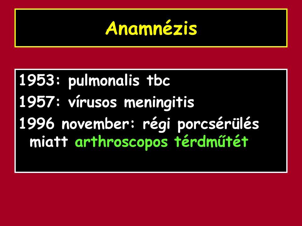 Anamnézis 1953: pulmonalis tbc 1957: vírusos meningitis 1996 november: régi porcsérülés miatt arthroscopos térdműtét
