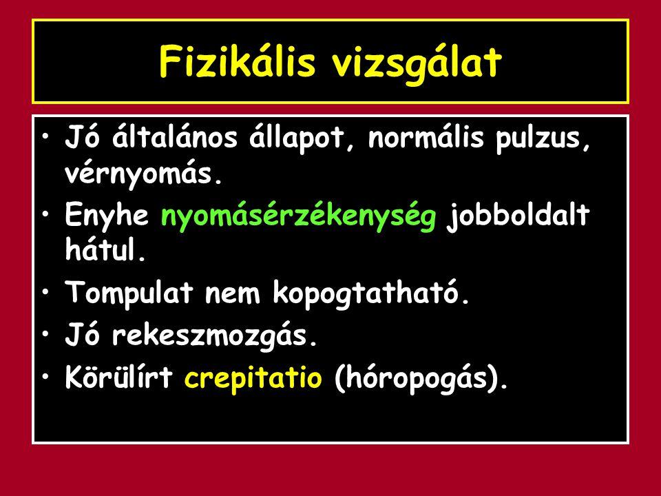Fizikális vizsgálat Jó általános állapot, normális pulzus, vérnyomás. Enyhe nyomásérzékenység jobboldalt hátul. Tompulat nem kopogtatható. Jó rekeszmo