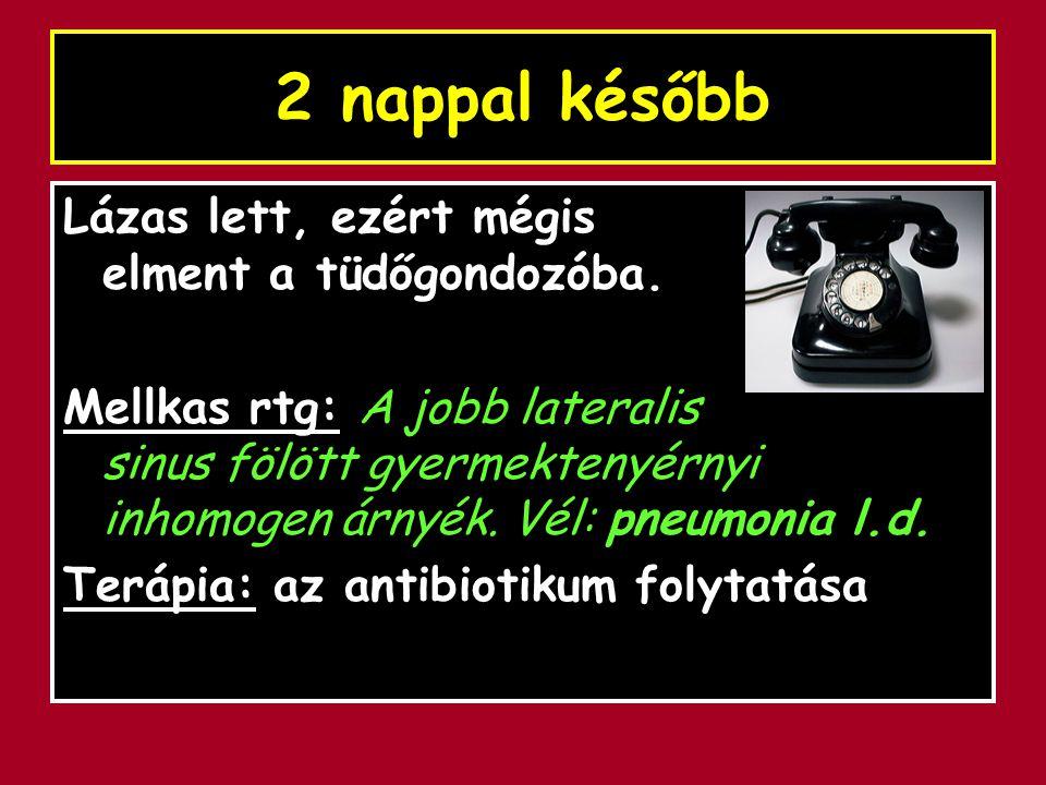 2 nap múlva: márc.1. ABPM: Vél: hypertonia, csökkent diurnális ritmus.