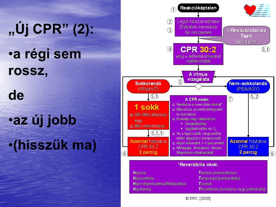 """""""Új CPR"""" (2): a régi sem rossz, de az új jobb (hisszük ma)"""