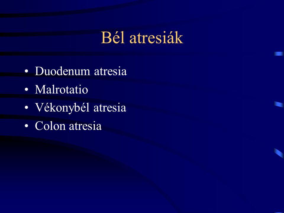 Bél atresiák Duodenum atresia Malrotatio Vékonybél atresia Colon atresia