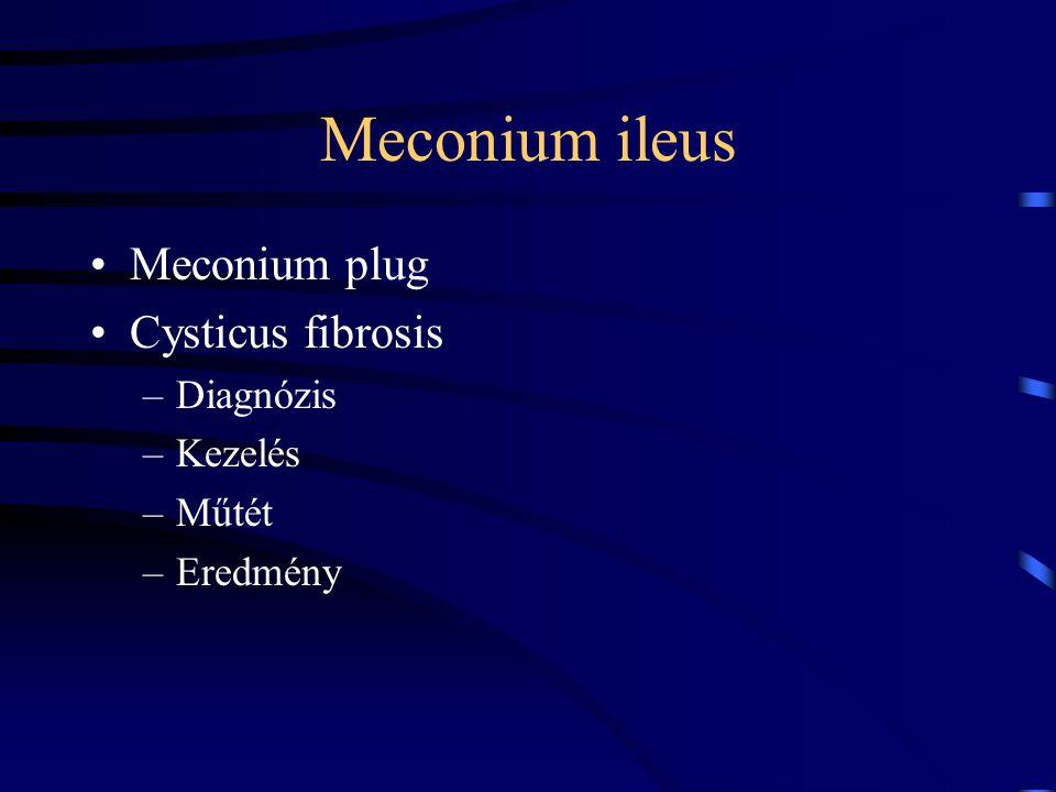 Meconium ileus Meconium plug Cysticus fibrosis –Diagnózis –Kezelés –Műtét –Eredmény