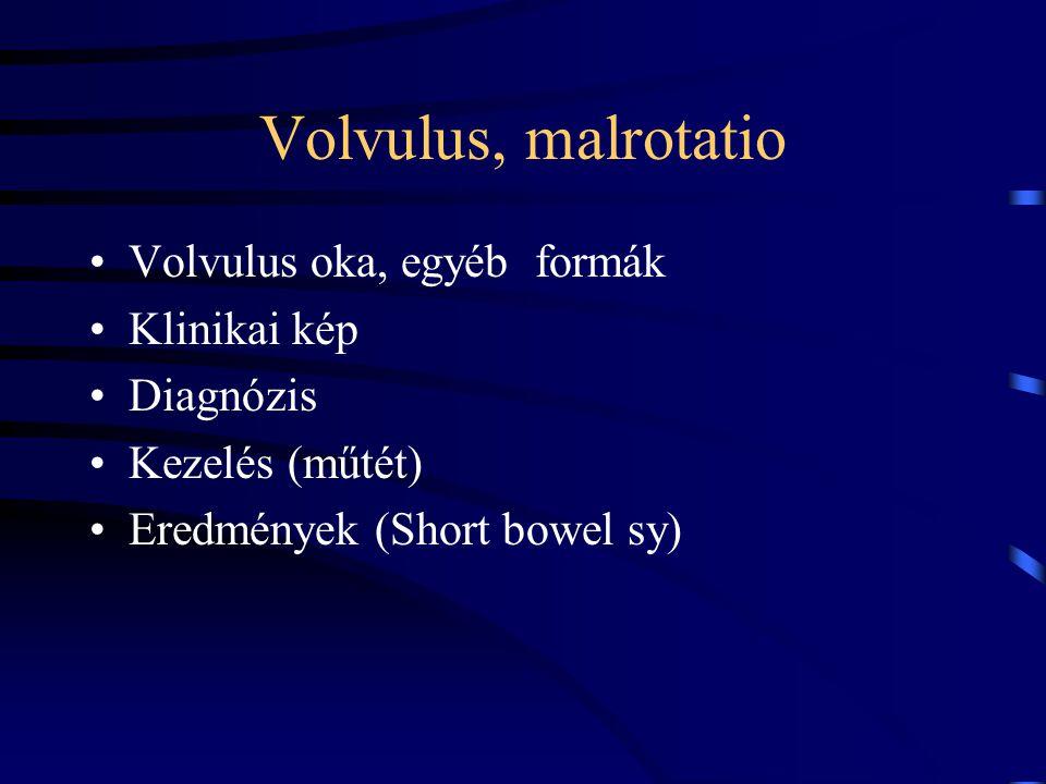 Volvulus, malrotatio Volvulus oka, egyéb formák Klinikai kép Diagnózis Kezelés (műtét) Eredmények (Short bowel sy)