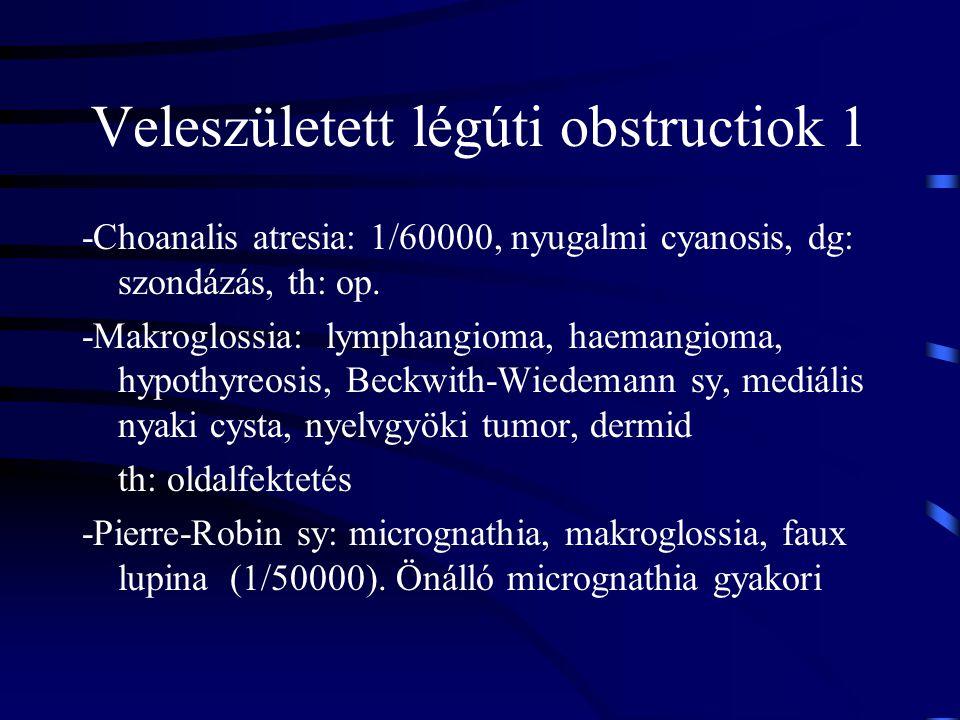 Veleszületett légúti obstructiok 1 -Choanalis atresia: 1/60000, nyugalmi cyanosis, dg: szondázás, th: op. -Makroglossia: lymphangioma, haemangioma, hy