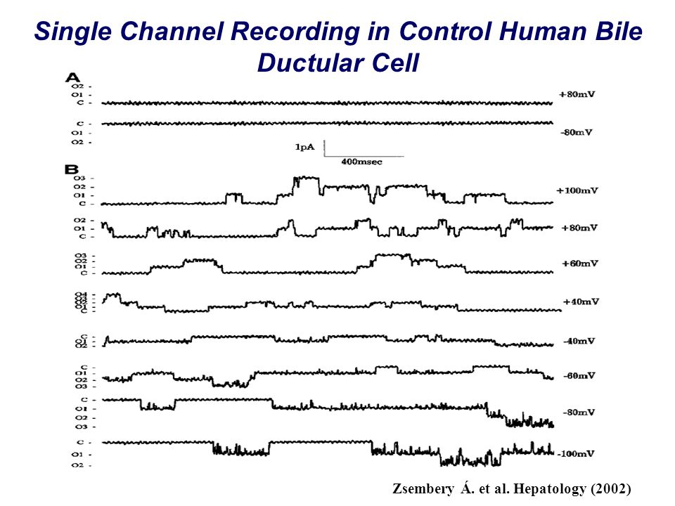 Single Channel Recording in Control Human Bile Ductular Cell Zsembery Á. et al. Hepatology (2002)