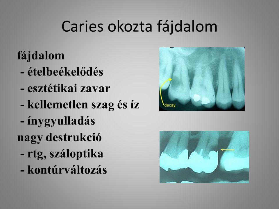 Caries okozta fájdalom fájdalom - ételbeékelődés - esztétikai zavar - kellemetlen szag és íz - ínygyulladás nagy destrukció - rtg, száloptika - kontúr