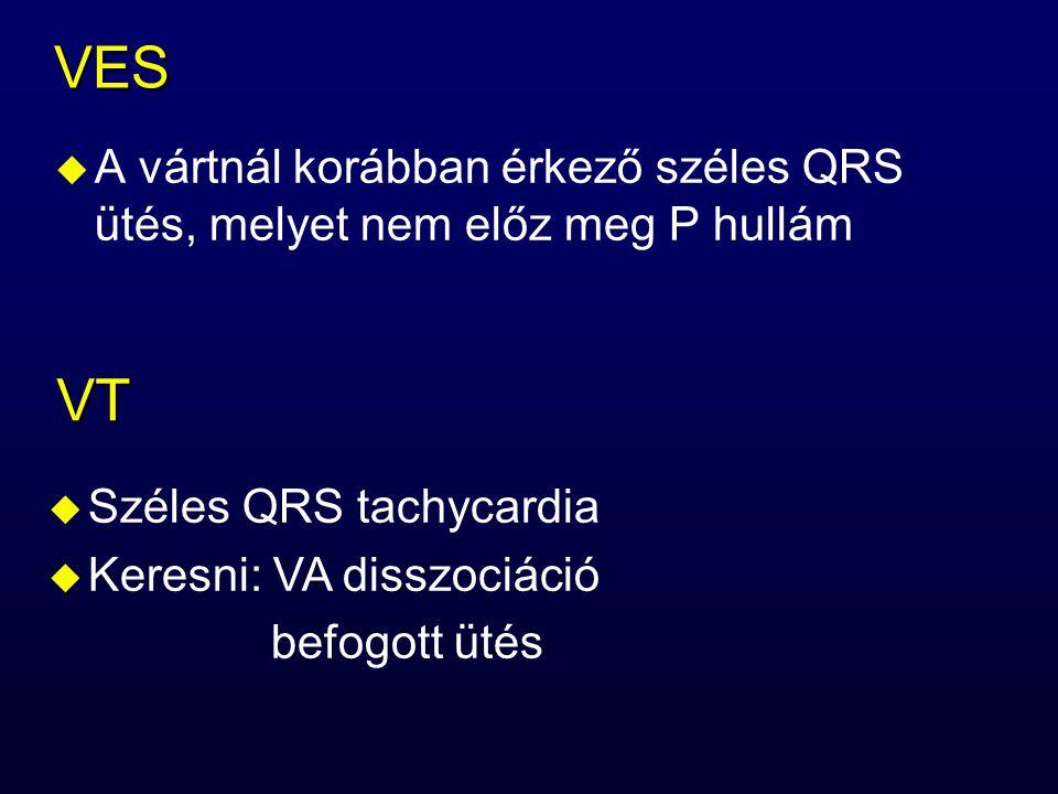 VES u A vártnál korábban érkező széles QRS ütés, melyet nem előz meg P hullám VT u Széles QRS tachycardia u Keresni: VA disszociáció befogott ütés