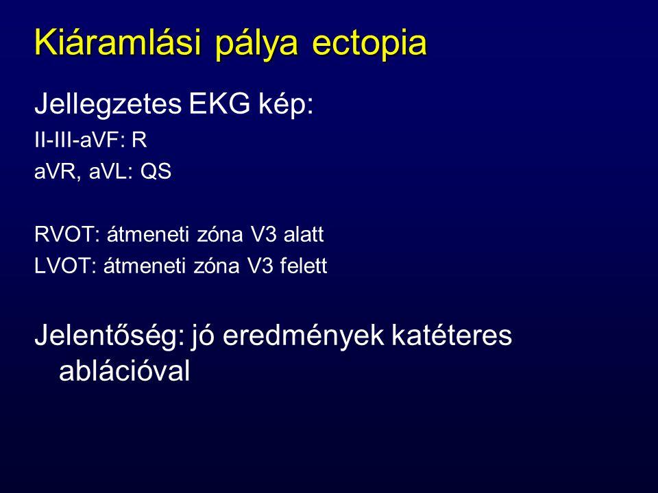 Kiáramlási pálya ectopia Jellegzetes EKG kép: II-III-aVF: R aVR, aVL: QS RVOT: átmeneti zóna V3 alatt LVOT: átmeneti zóna V3 felett Jelentőség: jó ere