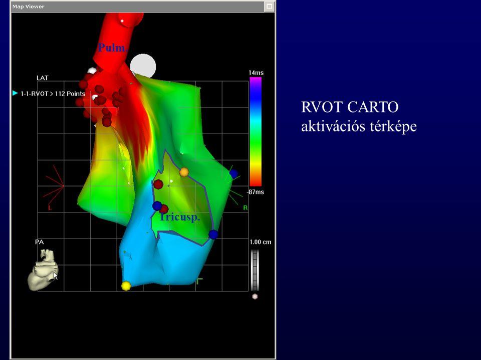 RVOT CARTO aktivációs térképe Tricusp. Pulm.
