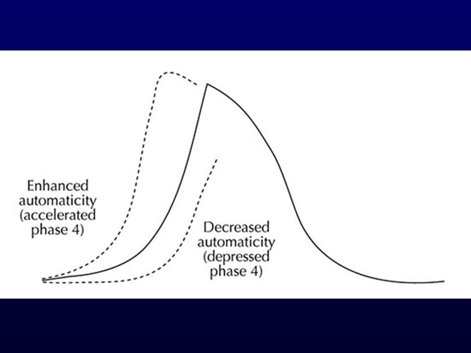 Kiáramlási pálya ectopia Jellegzetes EKG kép: II-III-aVF: R aVR, aVL: QS RVOT: átmeneti zóna V3 alatt LVOT: átmeneti zóna V3 felett Jelentőség: jó eredmények katéteres ablációval