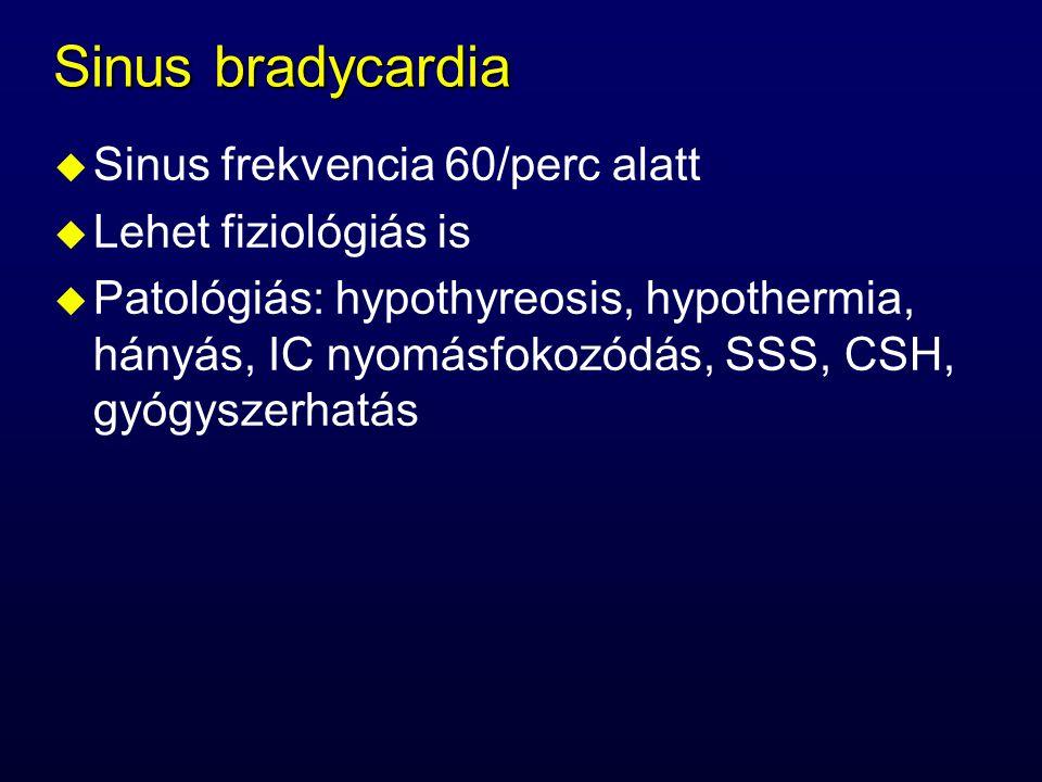 Sinus bradycardia u Sinus frekvencia 60/perc alatt u Lehet fiziológiás is u Patológiás: hypothyreosis, hypothermia, hányás, IC nyomásfokozódás, SSS, C