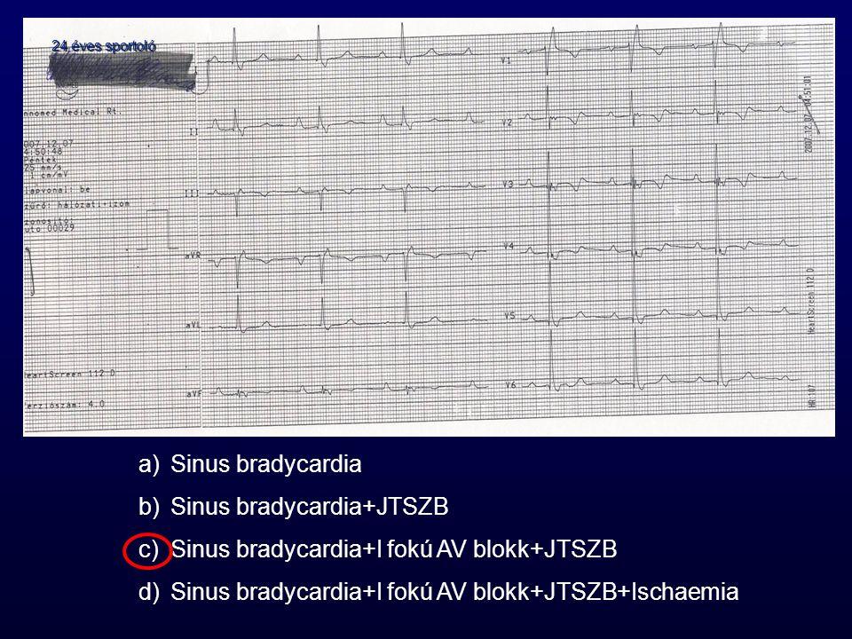 24 éves sportoló a)Sinus bradycardia b)Sinus bradycardia+JTSZB c)Sinus bradycardia+I fokú AV blokk+JTSZB d)Sinus bradycardia+I fokú AV blokk+JTSZB+Isc