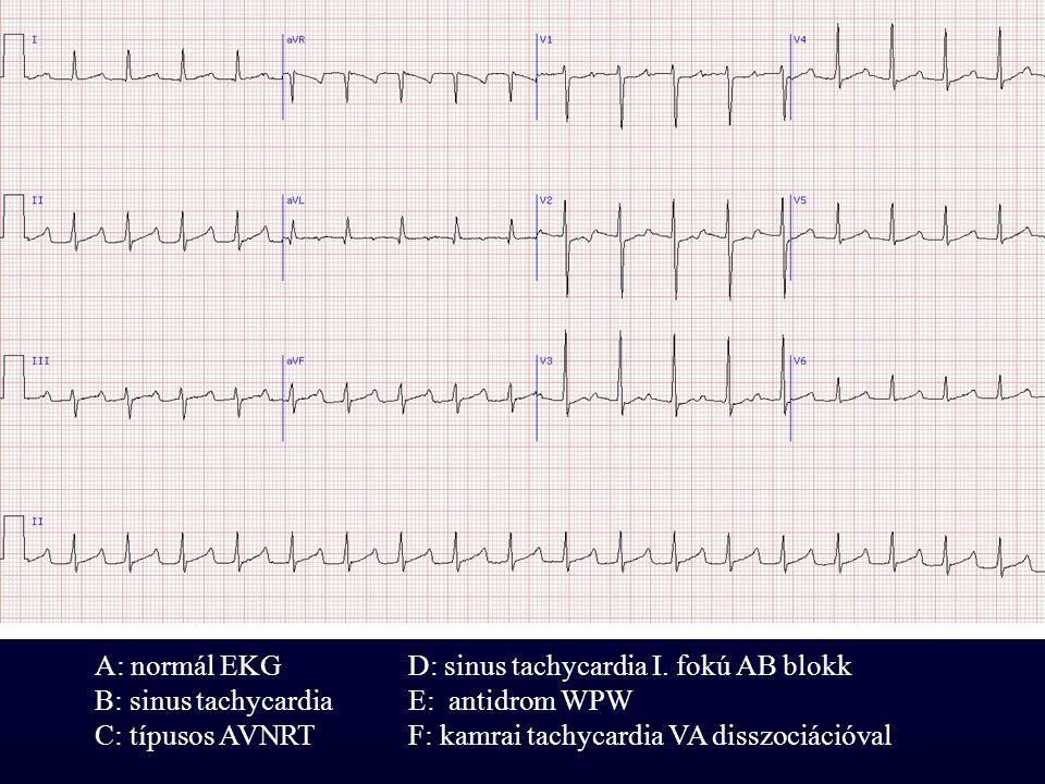 A: normál EKGD: sinus tachycardia I. fokú AB blokk B: sinus tachycardiaE: antidrom WPW C: típusos AVNRTF: kamrai tachycardia VA disszociációval