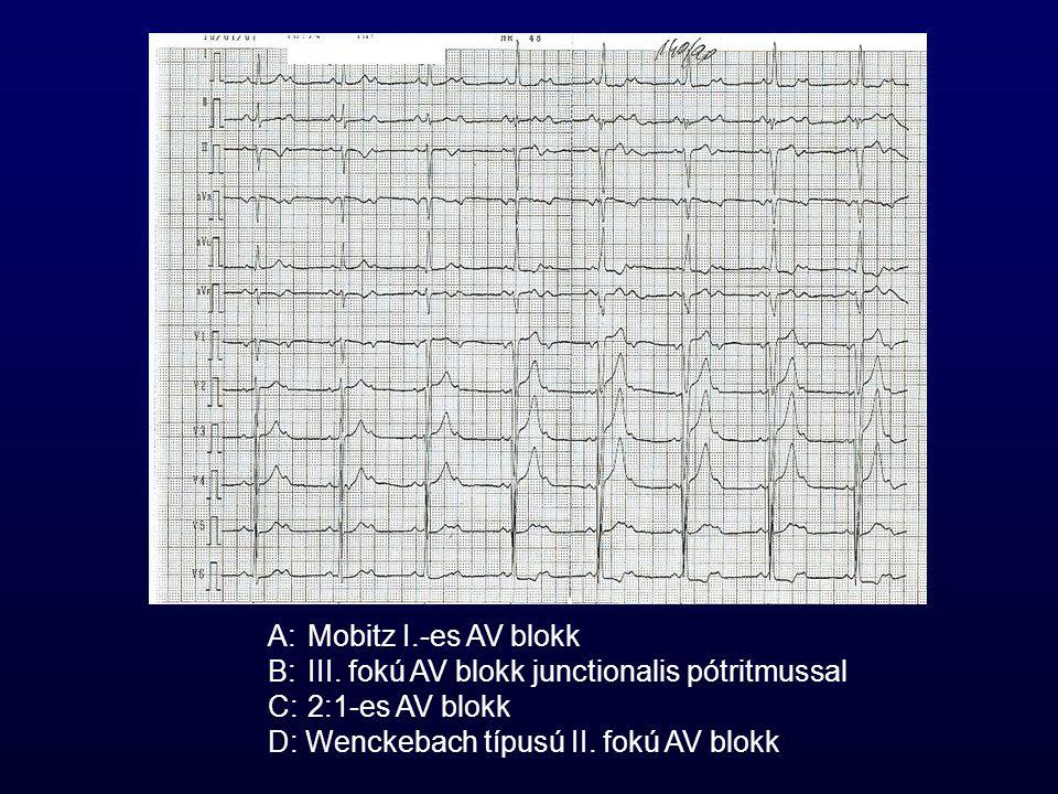 A: Mobitz I.-es AV blokk B:III. fokú AV blokk junctionalis pótritmussal C:2:1-es AV blokk D: Wenckebach típusú II. fokú AV blokk
