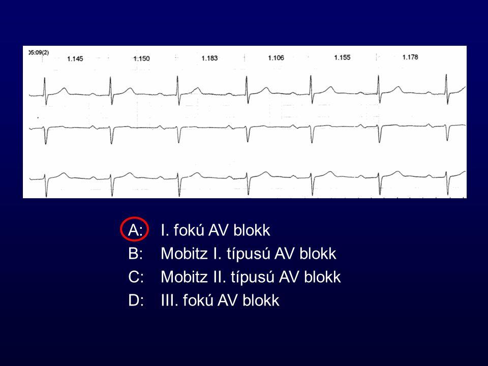 A:I. fokú AV blokk B:Mobitz I. típusú AV blokk C:Mobitz II. típusú AV blokk D:III. fokú AV blokk