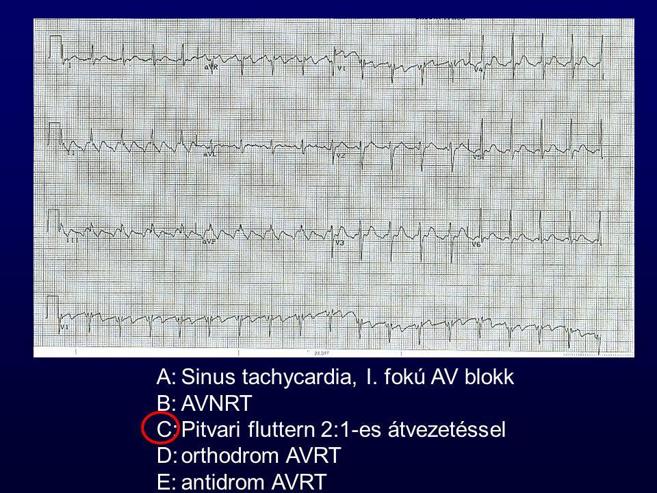 A:Sinus tachycardia, I. fokú AV blokk B:AVNRT C:Pitvari fluttern 2:1-es átvezetéssel D:orthodrom AVRT E:antidrom AVRT