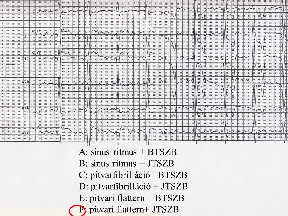 A: sinus ritmus + BTSZB B: sinus ritmus + JTSZB C: pitvarfibrilláció+ BTSZB D: pitvarfibrilláció + JTSZB E: pitvari flattern + BTSZB F: pitvari flatte
