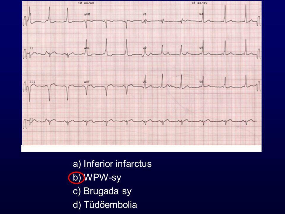 a)Inferior infarctus b)WPW-sy c)Brugada sy d)Tüdőembolia