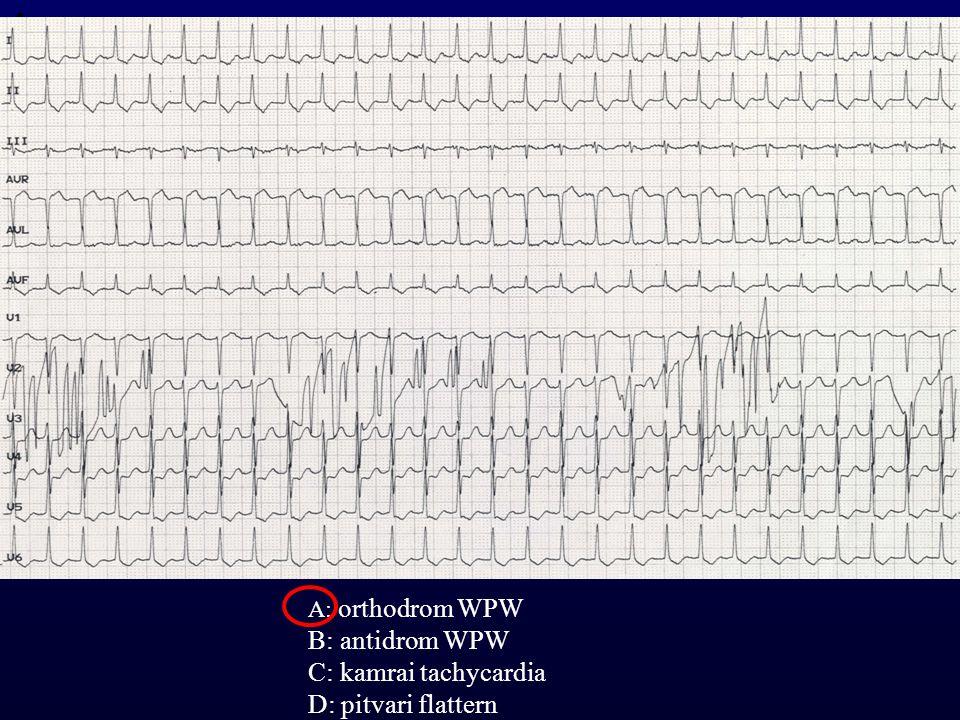 1 A: orthodrom WPW B: antidrom WPW C: kamrai tachycardia D: pitvari flattern
