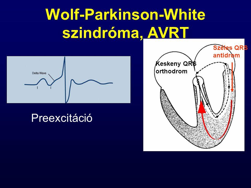 Wolf-Parkinson-White szindróma, AVRT Preexcitáció Széles QRS antidrom Keskeny QRS orthodrom