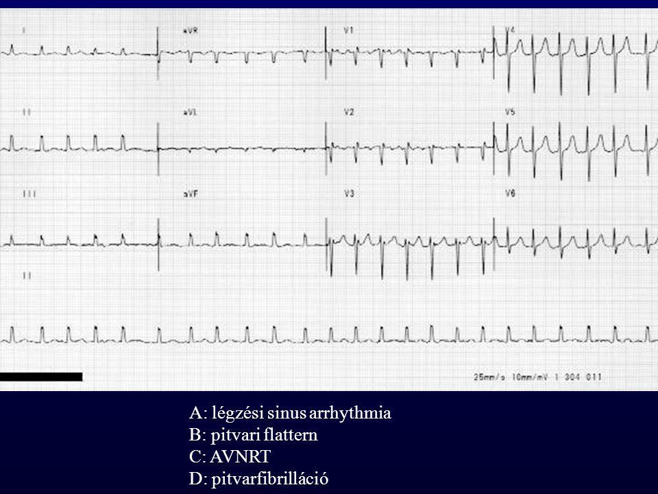 A: légzési sinus arrhythmia B: pitvari flattern C: AVNRT D: pitvarfibrilláció