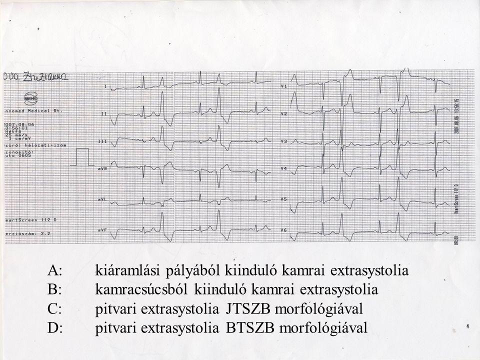 A: kiáramlási pályából kiinduló kamrai extrasystolia B:kamracsúcsból kiinduló kamrai extrasystolia C: pitvari extrasystolia JTSZB morfológiával D:pitv