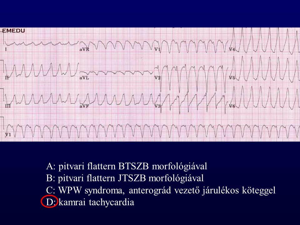 A: pitvari flattern BTSZB morfológiával B: pitvari flattern JTSZB morfológiával C: WPW syndroma, anterográd vezető járulékos köteggel D: kamrai tachyc