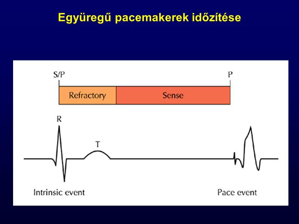 Együregű pacemakerek időzítése