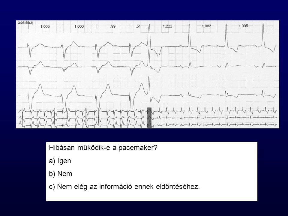 Hibásan működik-e a pacemaker? a) Igen b) Nem c) Nem elég az információ ennek eldöntéséhez.