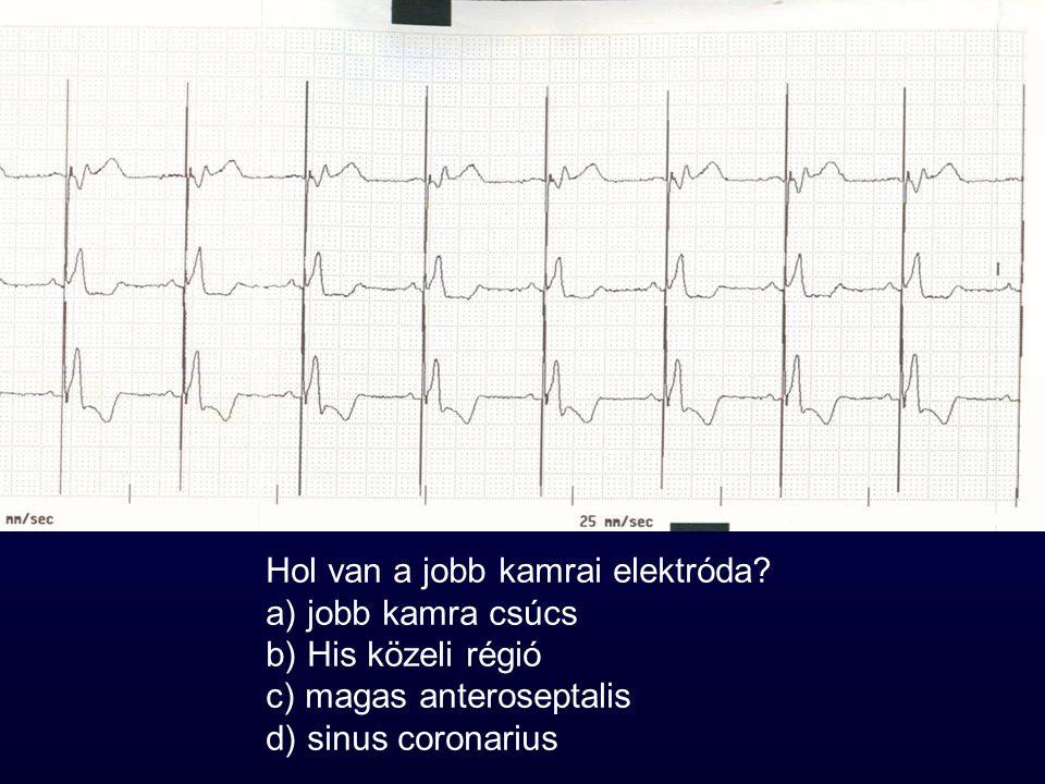 Hol van a jobb kamrai elektróda? a) jobb kamra csúcs b) His közeli régió c) magas anteroseptalis d) sinus coronarius