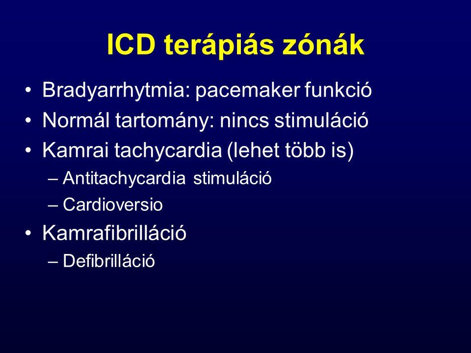 ICD terápiás zónák Bradyarrhytmia: pacemaker funkció Normál tartomány: nincs stimuláció Kamrai tachycardia (lehet több is) –Antitachycardia stimuláció