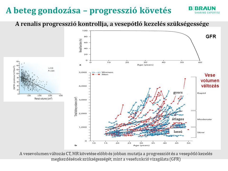 A beteg gondozása – progresszió követés A renalis progresszió kontrollja, a vesepótló kezelés szükségessége GFR Vese volumen változás A vesevolumen változás CT, MR követése előbb és jobban mutatja a progressziót és a vesepótló kezelés megkezdésének szükségességét, mint a vesefunkció vizsgálata (GFR) gyors átlagos lassú