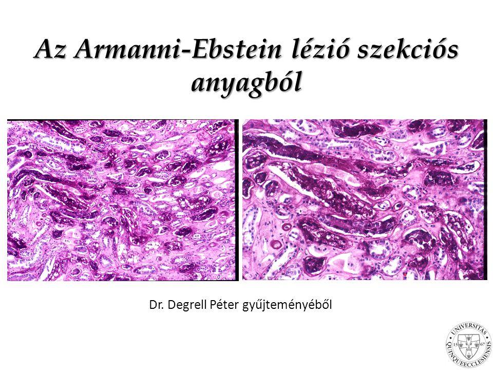 Az Armanni-Ebstein lézió szekciós anyagból Dr. Degrell Péter gyűjteményéből