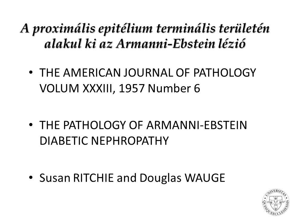 A proximális epitélium terminális területén alakul ki az Armanni-Ebstein lézió THE AMERICAN JOURNAL OF PATHOLOGY VOLUM XXXIII, 1957 Number 6 THE PATHOLOGY OF ARMANNI-EBSTEIN DIABETIC NEPHROPATHY Susan RITCHIE and Douglas WAUGE