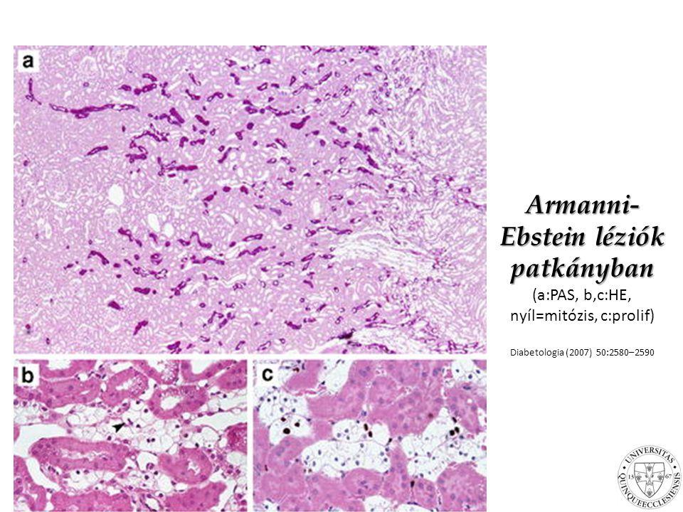 Armanni- Ebstein léziók patkányban Armanni- Ebstein léziók patkányban (a:PAS, b,c:HE, nyíl=mitózis, c:prolif) Diabetologia (2007) 50:2580–2590