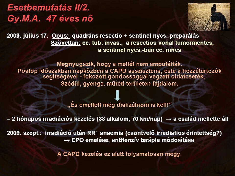 Esetbemutatás II/2. Gy.M.A. 47 éves nő 2009. július 17. Opus: quadráns resectio + sentinel nycs. preparálás Szövettan: cc. tub. invas., a resectios vo