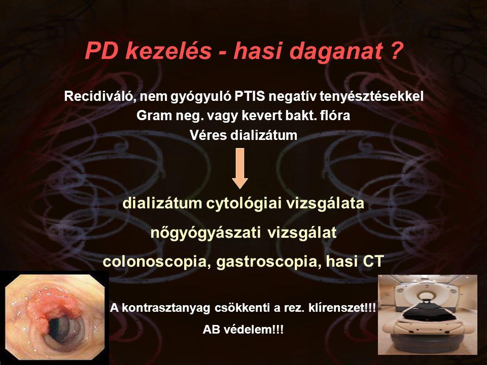 PD kezelés - hasi daganat ? Recidiváló, nem gyógyuló PTIS negatív tenyésztésekkel Gram neg. vagy kevert bakt. flóra Véres dializátum dializátum cytoló