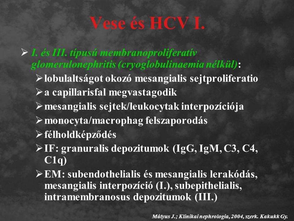 Vese és HCV I.  I. és III. típusú membranoproliferatív glomerulonephritis (cryoglobulinaemia nélkül):  lobulaltságot okozó mesangialis sejtprolifera