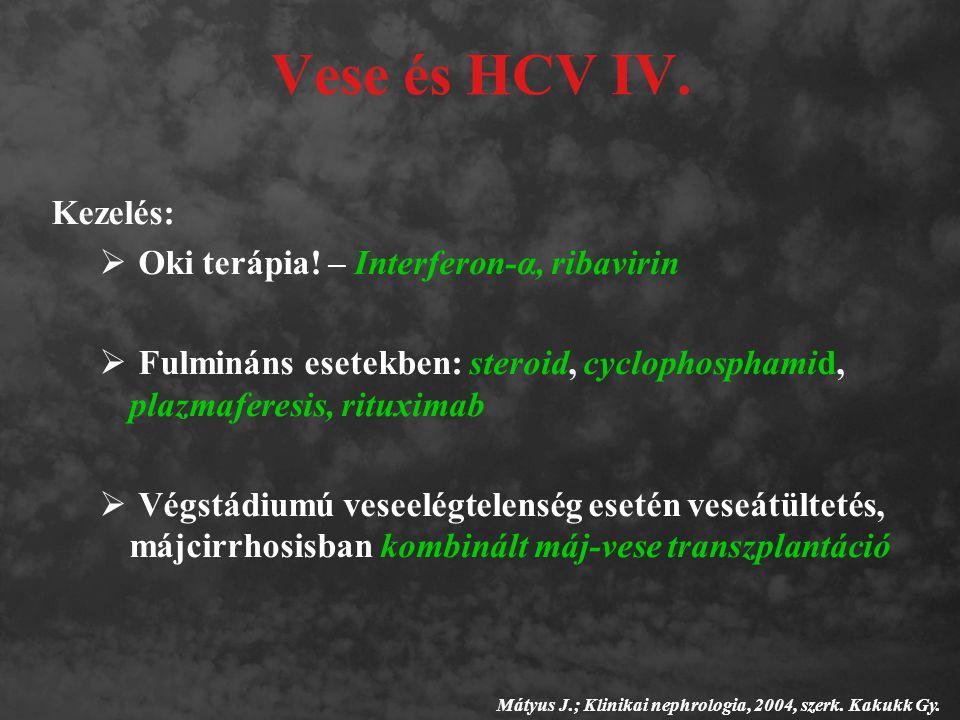 Vese és HCV IV. Kezelés:  Oki terápia! – Interferon-α, ribavirin  Fulmináns esetekben: steroid, cyclophosphamid, plazmaferesis, rituximab  Végstádi