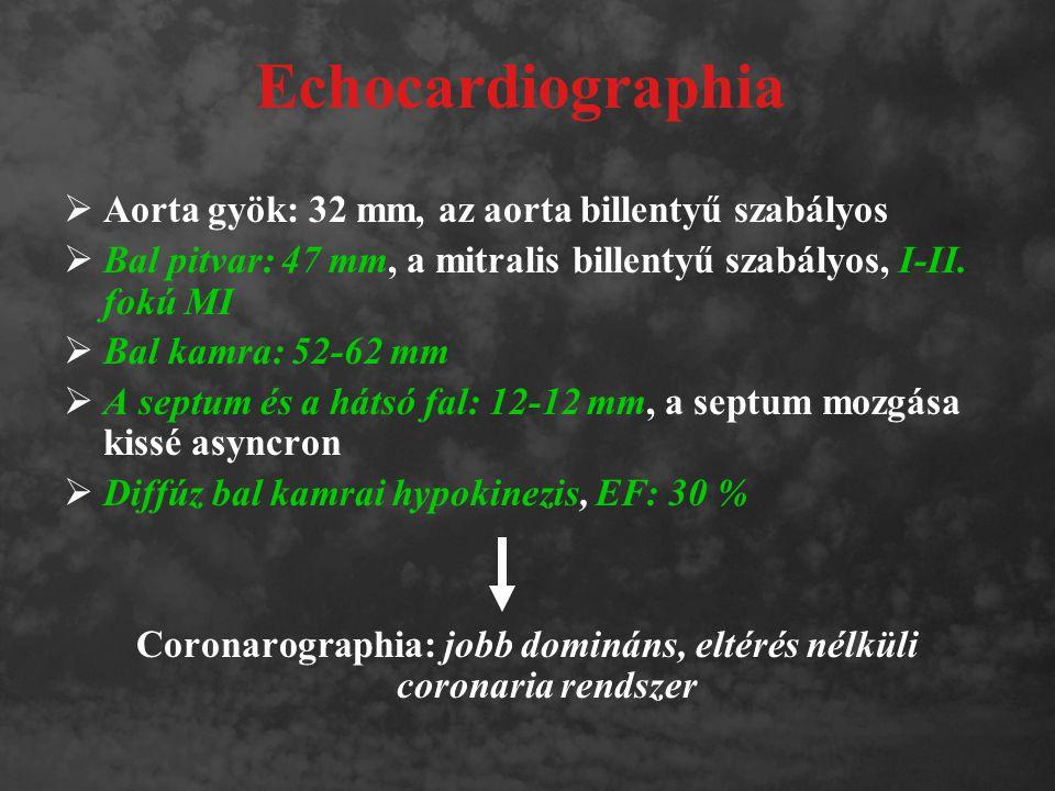 Echocardiographia  Aorta gyök: 32 mm, az aorta billentyű szabályos  Bal pitvar: 47 mm, a mitralis billentyű szabályos, I-II. fokú MI  Bal kamra: 52