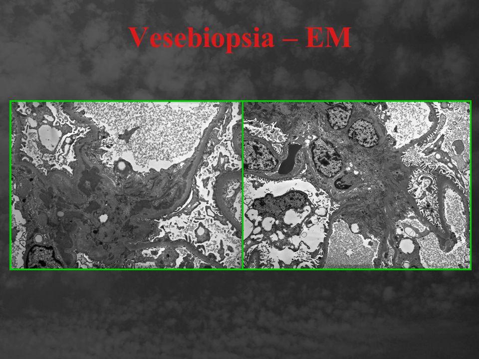 Vesebiopsia – EM