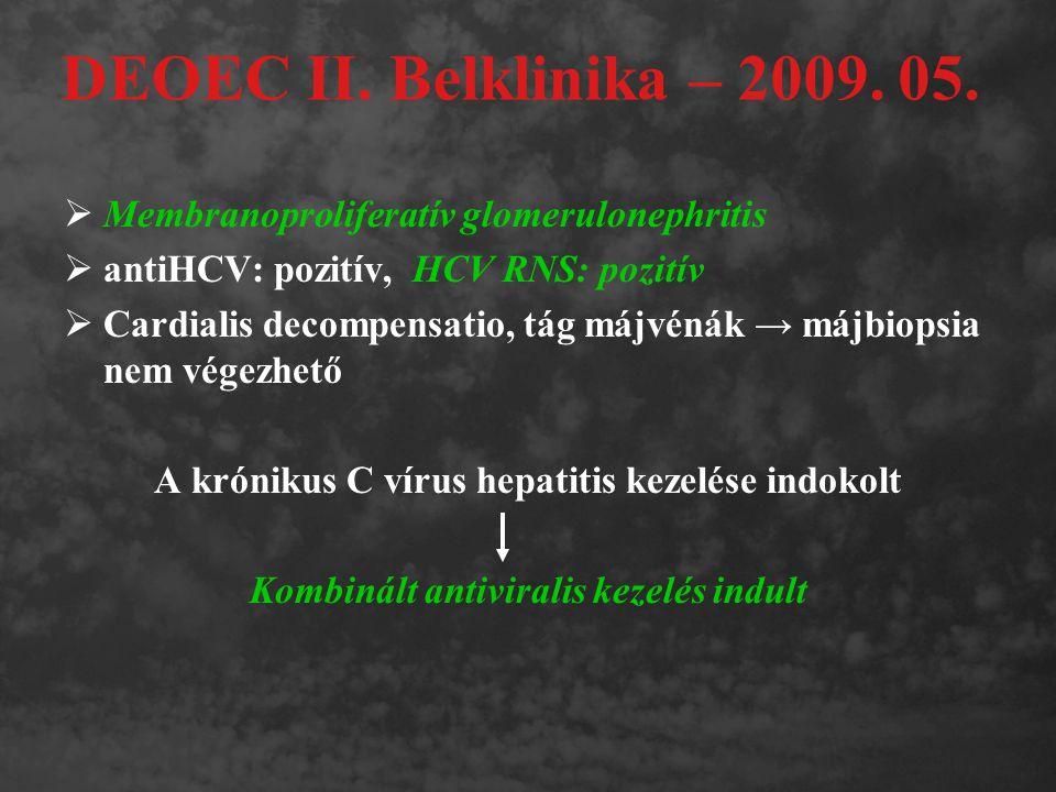 DEOEC II. Belklinika – 2009. 05.  Membranoproliferatív glomerulonephritis  antiHCV: pozitív, HCV RNS: pozitív  Cardialis decompensatio, tág májvéná