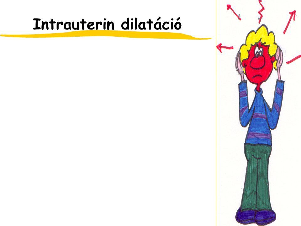 Intrauterin dilatáció