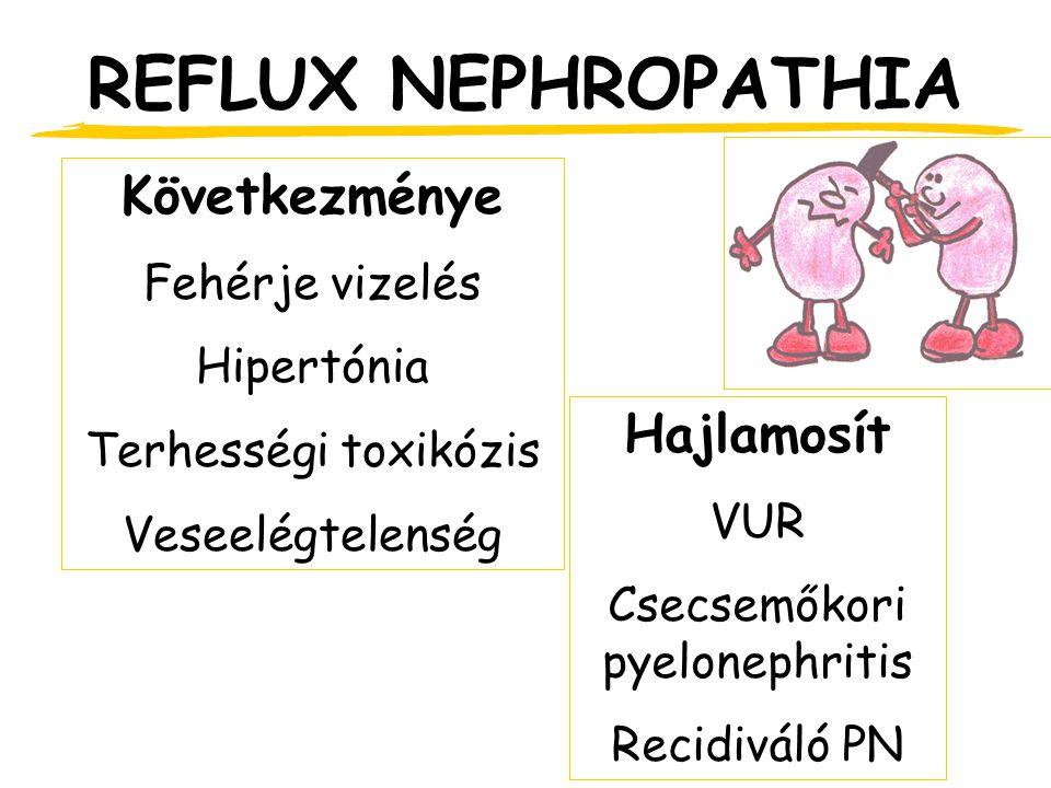REFLUX NEPHROPATHIA Hajlamosít VUR Csecsemőkori pyelonephritis Recidiváló PN Következménye Fehérje vizelés Hipertónia Terhességi toxikózis Veseelégtelenség
