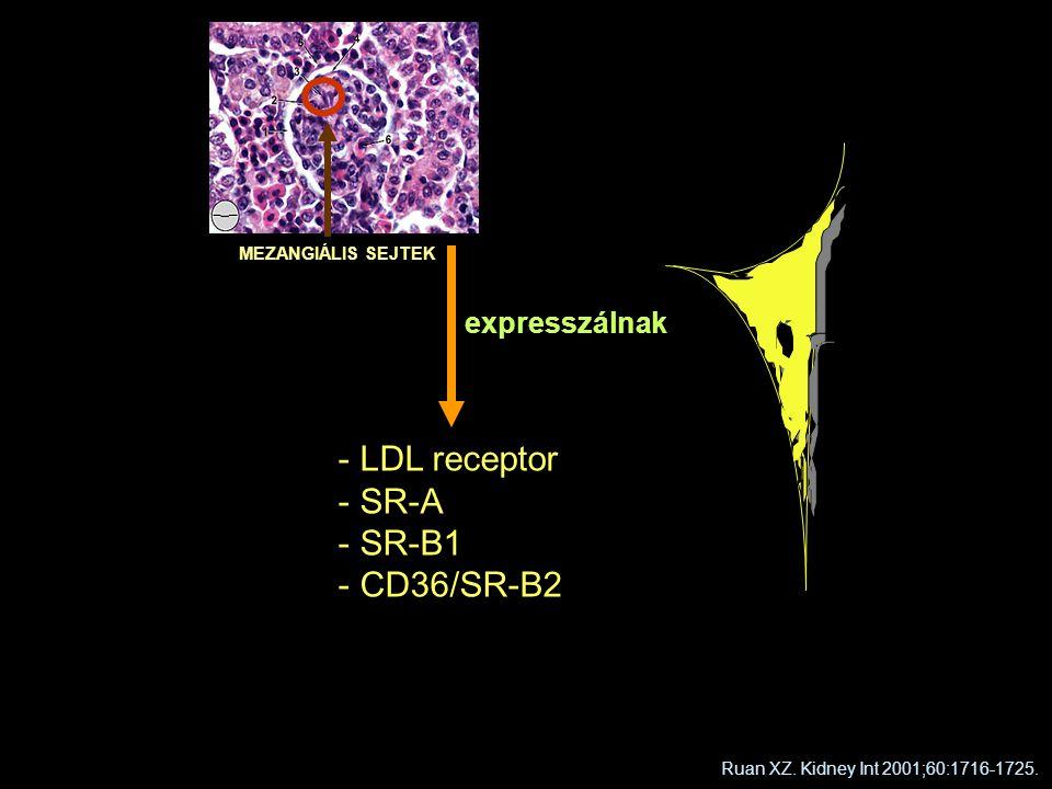 MEZANGIÁLIS SEJTEK - LDL receptor - SR-A - SR-B1 - CD36/SR-B2 expresszálnak Ruan XZ. Kidney Int 2001;60:1716-1725.