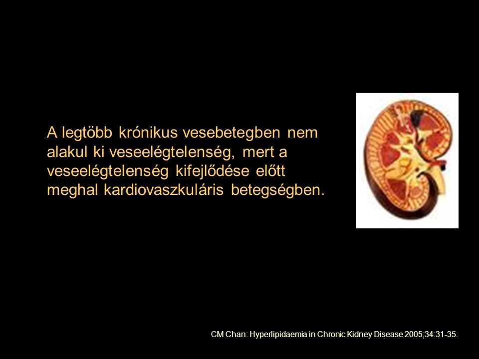 A legtöbb krónikus vesebetegben nem alakul ki veseelégtelenség, mert a veseelégtelenség kifejlődése előtt meghal kardiovaszkuláris betegségben. CM Cha