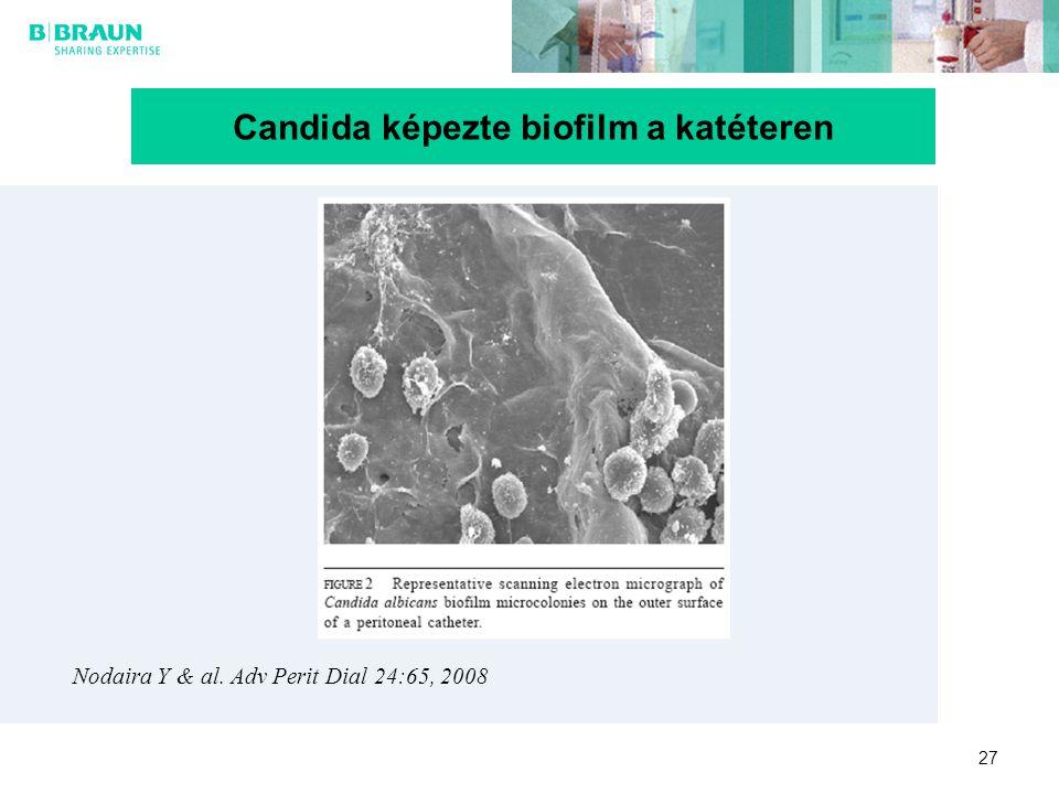 27 Candida képezte biofilm a katéteren Nodaira Y & al. Adv Perit Dial 24:65, 2008