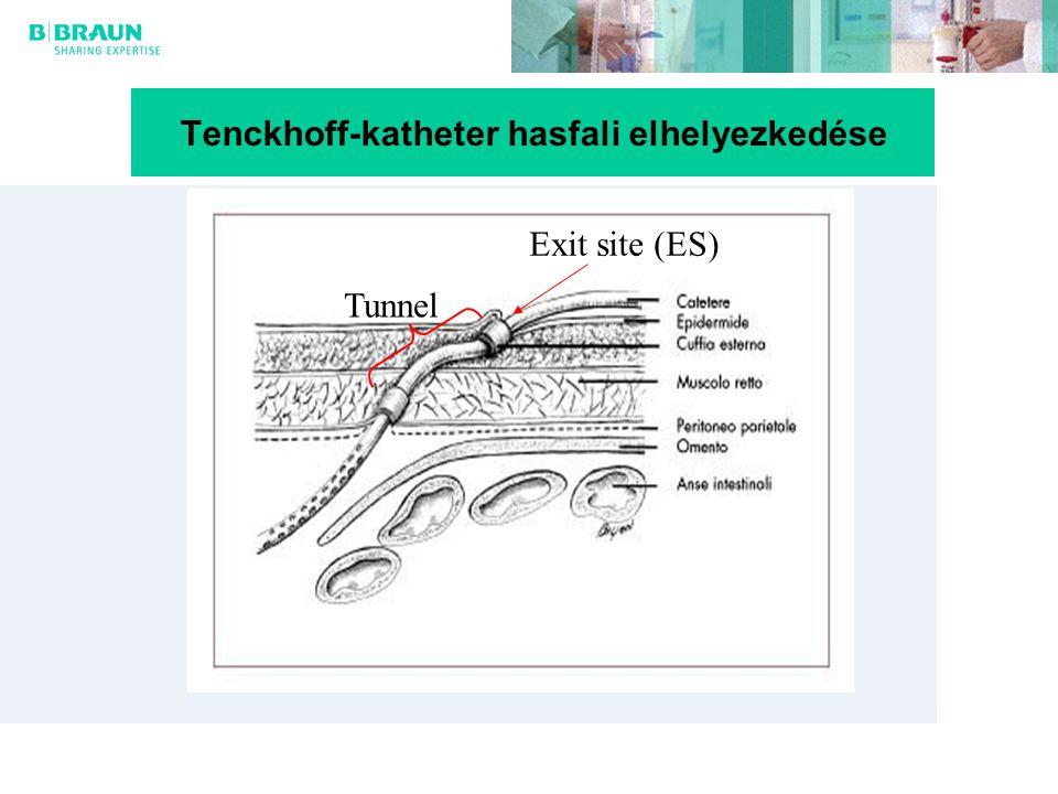 Tenckhoff-katheter hasfali elhelyezkedése Exit site (ES) Tunnel